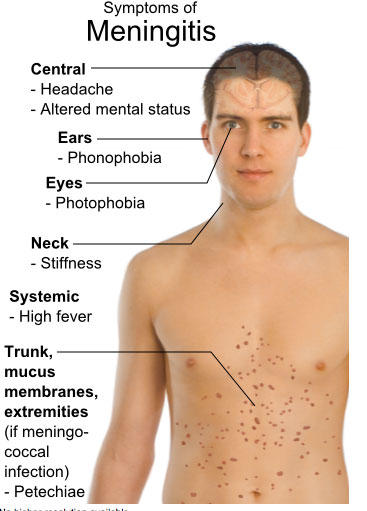 meningitis-rash-photo-library-i3