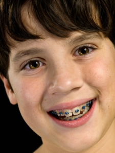 child-with-braces